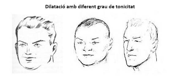 dilatado_tonic