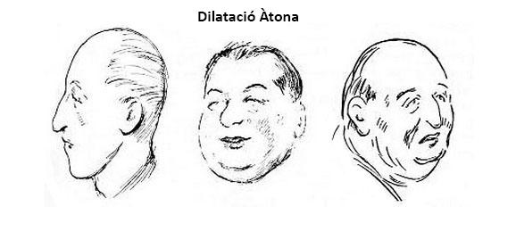 dilatat_aton